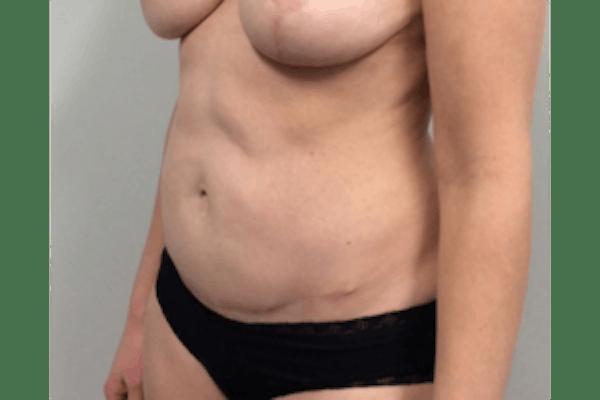 Tummy Tuck (Abdominoplasty) Gallery - Patient 4594911 - Image 4