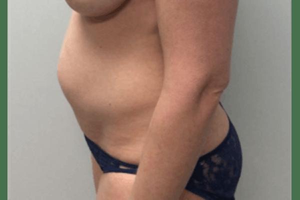 Tummy Tuck (Abdominoplasty) Gallery - Patient 4594911 - Image 5