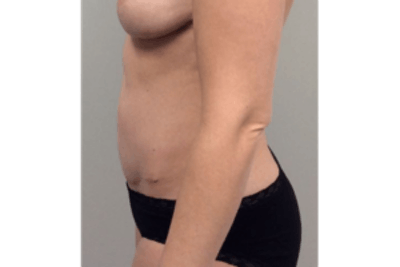 Tummy Tuck (Abdominoplasty) Gallery - Patient 4594911 - Image 6