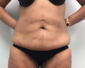 Abdominoplasty Gallery - Patient 4594912 - Image 27