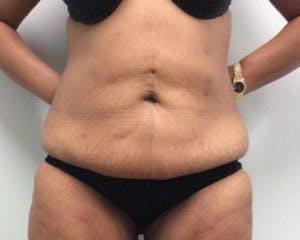 Abdominoplasty Gallery - Patient 4594912 - Image 1