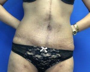 Abdominoplasty Gallery - Patient 4594912 - Image 2