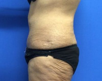 Tummy Tuck (Abdominoplasty) Gallery - Patient 4594912 - Image 4