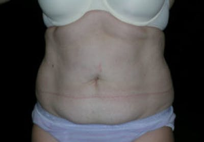 Tummy Tuck (Abdominoplasty) Gallery - Patient 4594913 - Image 1