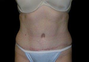 Abdominoplasty Gallery - Patient 4594913 - Image 2