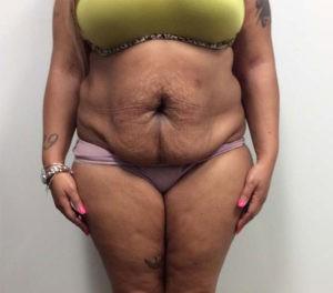 Abdominoplasty Gallery - Patient 4594914 - Image 29
