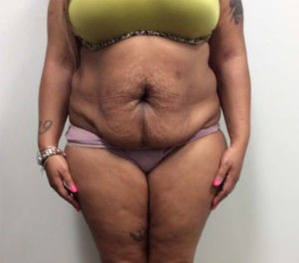 Tummy Tuck (Abdominoplasty) Gallery - Patient 4594914 - Image 1
