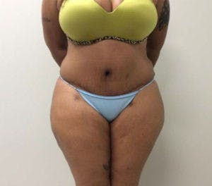 Abdominoplasty Gallery - Patient 4594914 - Image 2