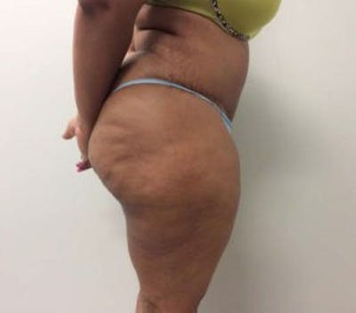 Tummy Tuck (Abdominoplasty) Gallery - Patient 4594914 - Image 4