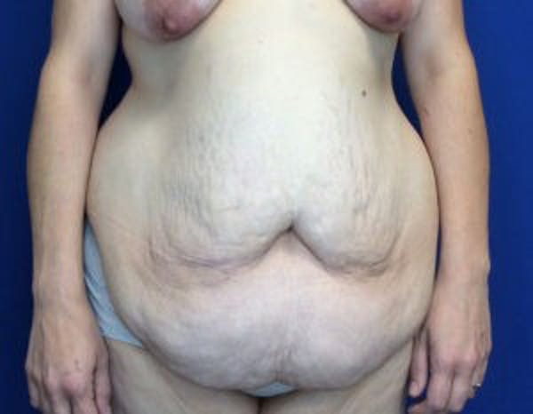 Tummy Tuck (Abdominoplasty) Gallery - Patient 4594916 - Image 1