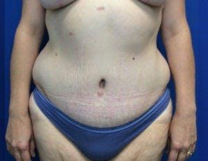 Abdominoplasty Gallery - Patient 4594916 - Image 2