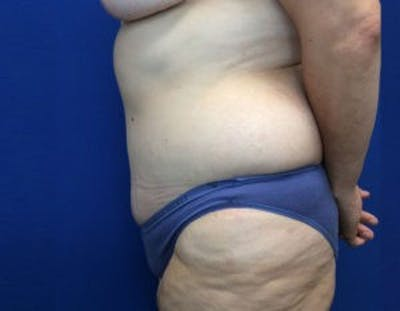 Tummy Tuck (Abdominoplasty) Gallery - Patient 4594916 - Image 4