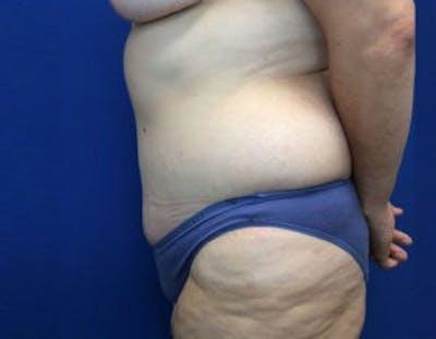 Tummy Tuck (Abdominoplasty) Gallery - Patient 4594916 - Image 4