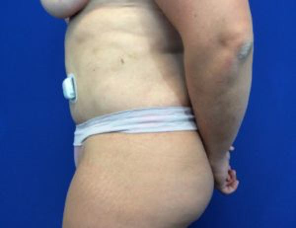 Tummy Tuck (Abdominoplasty) Gallery - Patient 4594917 - Image 6