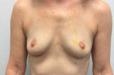 Breast Reconstruction Gallery - Patient 4594918 - Image 1