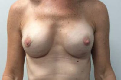 Breast Reconstruction Gallery - Patient 4594918 - Image 2