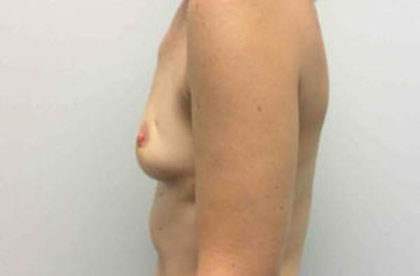 Implant Reconstruction Gallery - Patient 4715918 - Image 3