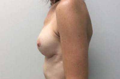 Breast Reconstruction Gallery - Patient 4594918 - Image 4