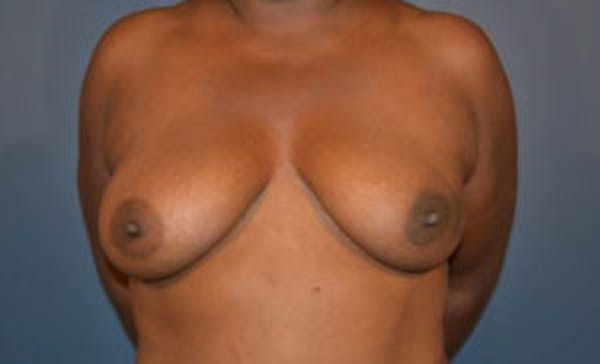 Implant Reconstruction Gallery - Patient 4715919 - Image 1