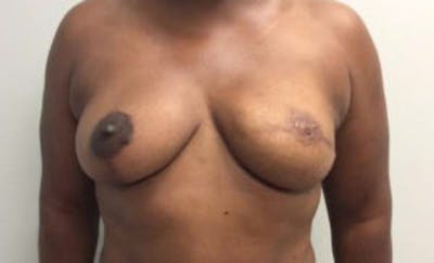 Breast Reconstruction Gallery - Patient 4594919 - Image 2