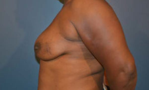 Implant Reconstruction Gallery - Patient 4715919 - Image 3