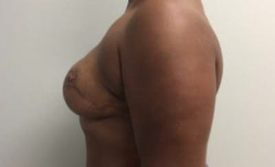 Breast Reconstruction Gallery - Patient 4594919 - Image 4