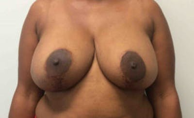 Breast Reconstruction Gallery - Patient 4594920 - Image 1
