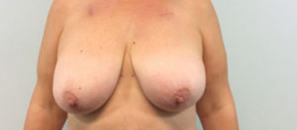 Breast Reconstruction Gallery - Patient 4594921 - Image 1