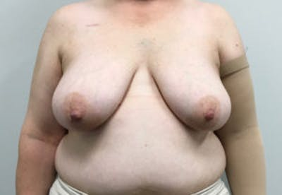 Breast Reconstruction Gallery - Patient 4594922 - Image 1