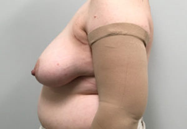 DIEP flap and other flaps Gallery - Patient 4715874 - Image 3