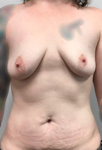 Breast Reconstruction Gallery - Patient 4594923 - Image 1