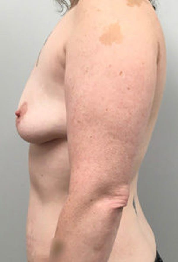 DIEP flap and other flaps Gallery - Patient 4715875 - Image 3