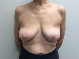 Implant Reconstruction Gallery - Patient 4715920 - Image 1