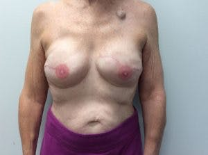 Implant Reconstruction Gallery - Patient 4715920 - Image 2