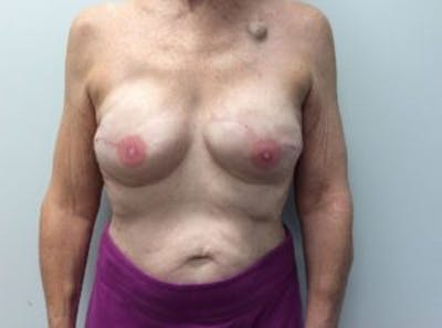 Breast Reconstruction Gallery - Patient 4594924 - Image 2