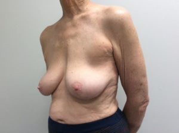 Breast Reconstruction Gallery - Patient 4594924 - Image 3