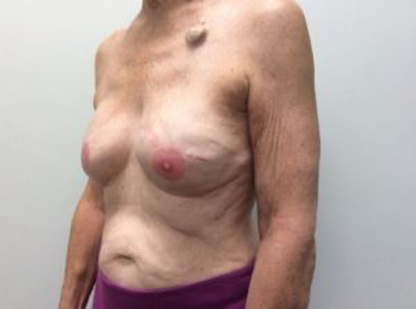 Breast Reconstruction Gallery - Patient 4594924 - Image 4