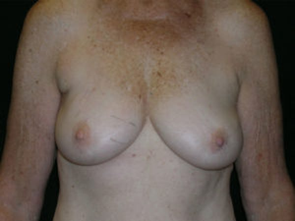 Breast Reconstruction Gallery - Patient 4594925 - Image 1
