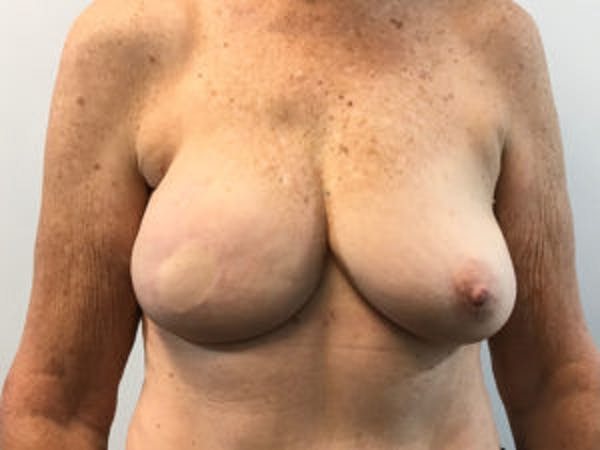 Breast Reconstruction Gallery - Patient 4594925 - Image 2