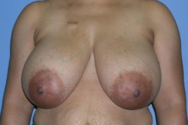 DIEP flap and other flaps Gallery - Patient 4715877 - Image 1