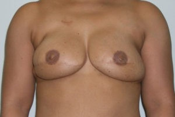 Breast Reconstruction Gallery - Patient 4594927 - Image 2