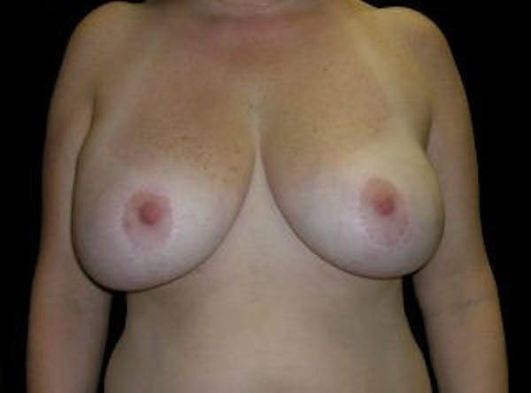 Breast Reconstruction Gallery - Patient 4594928 - Image 1