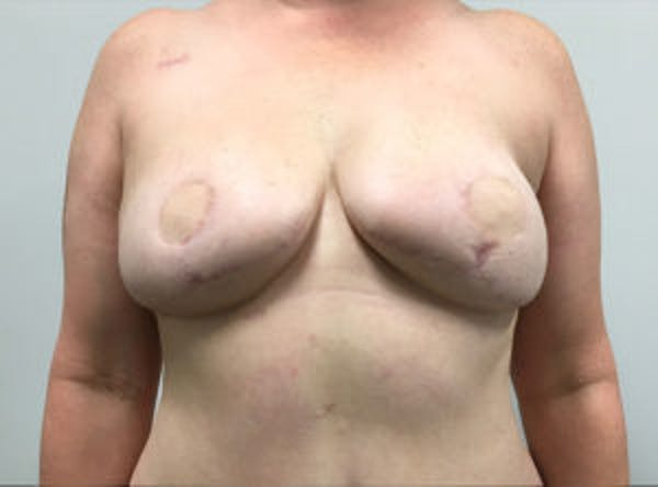 Breast Reconstruction Gallery - Patient 4594928 - Image 2