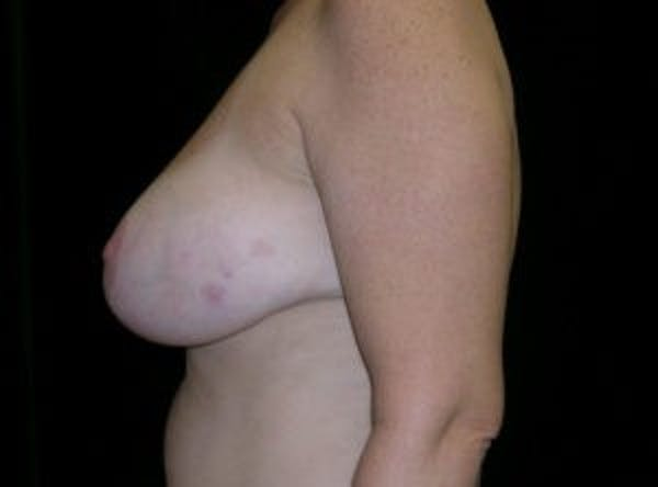 Breast Reconstruction Gallery - Patient 4594928 - Image 3