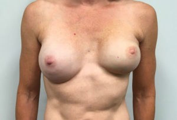 Breast Reconstruction Gallery - Patient 4594929 - Image 1