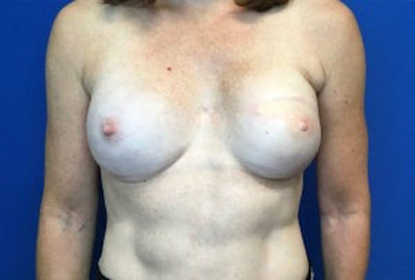 Breast Reconstruction Gallery - Patient 4594929 - Image 2