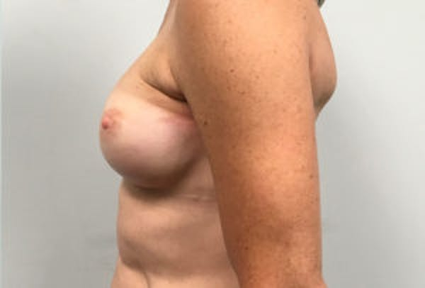 Breast Reconstruction Gallery - Patient 4594929 - Image 3