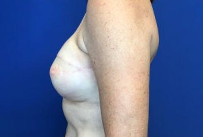 Breast Reconstruction Gallery - Patient 4594929 - Image 4