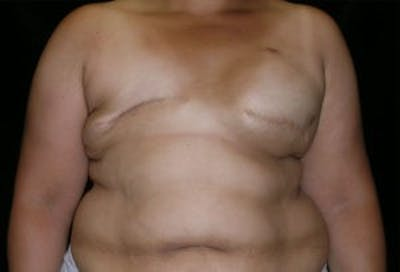 Breast Reconstruction Gallery - Patient 4594931 - Image 1