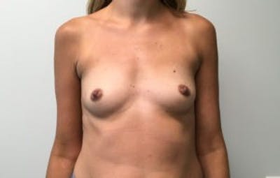 Breast Reconstruction Gallery - Patient 4594932 - Image 1